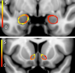 A Harvard-Northwestern study has found differences between the brains of young adult marijuana smokers and those of nonsmokers. In these composite scans, colors represent the differences— in the shape of the amygdala, top, and nucleus accumbens. Yellow indicates areas that are most different, red the least. Credit: The Journal of Neuroscience